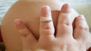swollen-fingers-21305-90528.jpg