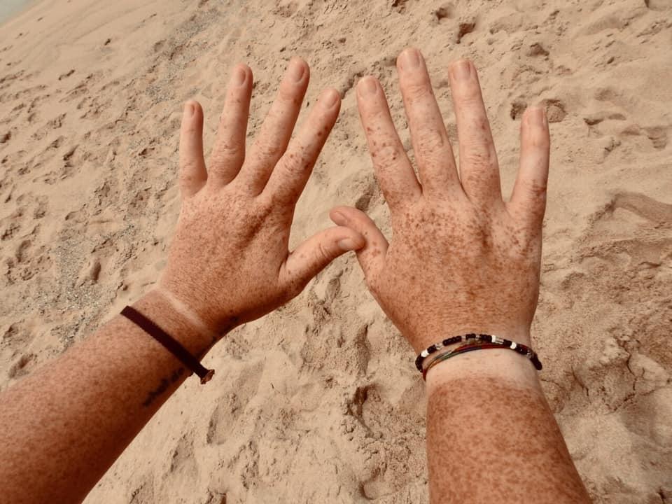 Carlotta AB facebook wrist freckles a plenty