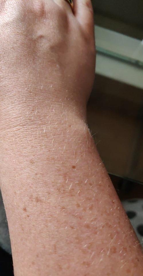 Christina Bach facebook freckle
