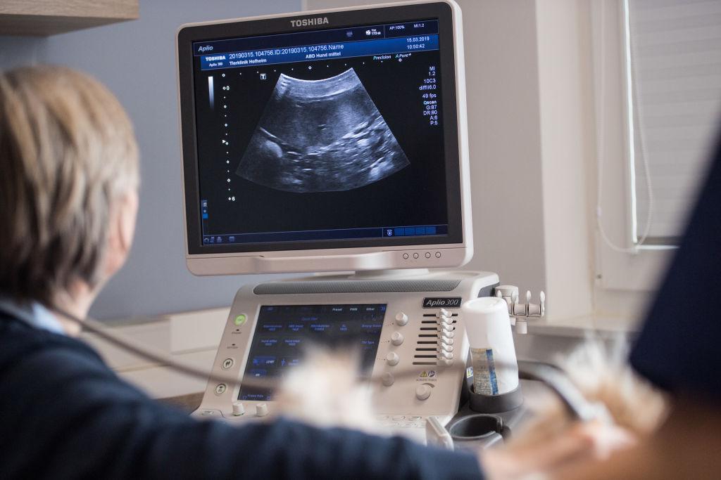 Doctor using ultrasound