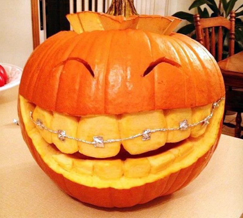A carved pumpkin appear to have braces over its giant teeth.