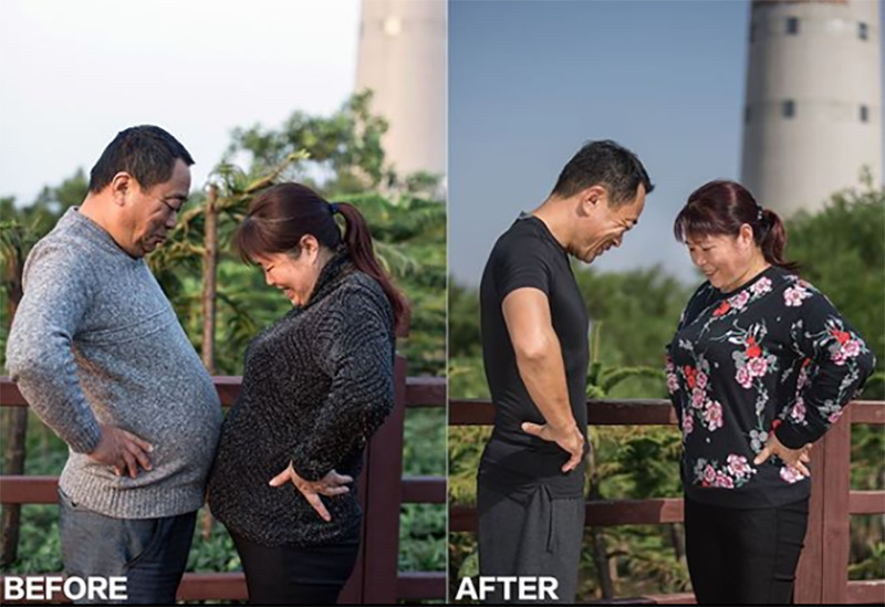 Jesse's parents compare stomachs before and after their weightloss.