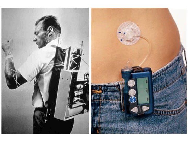 Insulin Pump – 1973