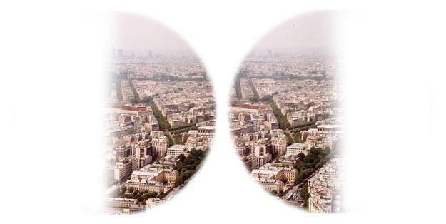 retina split in half and distorted